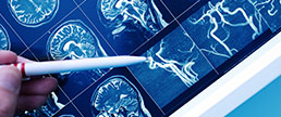 DAPT de curto versus longo prazo na prevenção secundária do AVC isquêmico: uma meta-análise