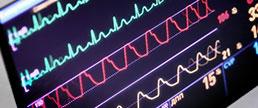 ESC 2020 - PARALLAX: Sacubitril/valsartana ou terapia otimizada com moduladores do SRA, em pacientes com IC com FE preservada