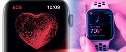 dentificação da Fibrilação Atrial através do aplicativo do Apple Watch