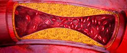 Adesão ao tratamento com estatinas e AAS em pacientes com doença aterosclerótica CV prematura