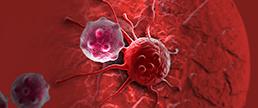 Foco crescente na saúde mental dos pacientes parece melhorar os resultados do câncer