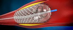 Impacto de eventos isquêmicos e sangramento após intervenção coronária percutânea no risco de mortalidade