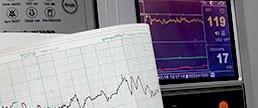 Impacto da reabilitação cardíaca nos eventos e na mortalidade CV