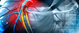 Intervenção coronária percutânea versus revascularização cirúrgica: mortalidade em meta-análise