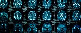 Lesão vascular cerebral e cognição