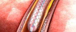 Perfil risco benefício de DAPT superior a 1 ano, após implante de stent farmacológico de acordo com a apresentação clínica