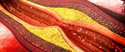 Placas ateroscleróticas coronárias calcificadas, de alta densidade, são mais estáveis?