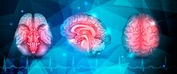 Relação do índice de massa corporal e disfunção cognitiva após acidente cerebrovascular