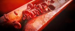 Risco aterosclerótico e uso de estatinas na doença arterial periférica